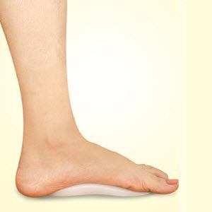 Medial Arch Support